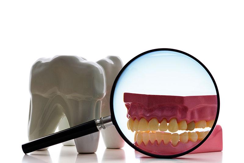 Root Canal - Bronson Dental, Cincinnati Dentist