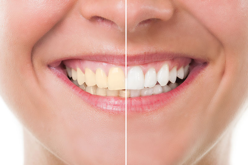 Teeth Whitening - Bronson Dental, Cincinnati Dentist